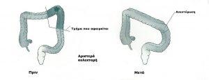 αριστερή κολεκτομή